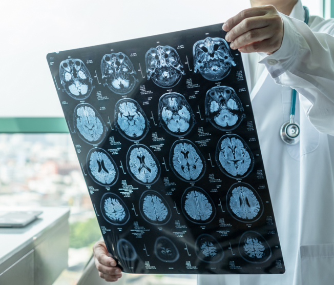 doctor looking at brain scan